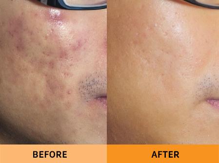 acne treatment malaysia